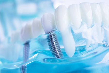 Modelo de enseñanza de los dientes dentales del dentista que muestra el tornillo de implante de dientes de metal de titanio. Foto de archivo