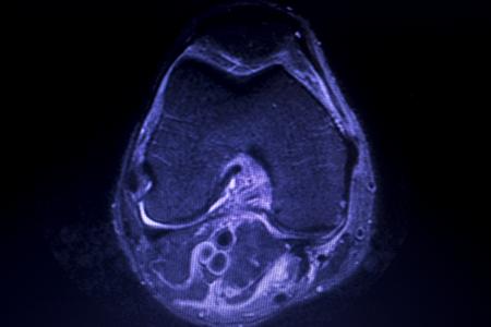 Magnetic resonance imaging MRI knee posterior horn medial meniscus tear scantest results. Stock Photo - 116704373