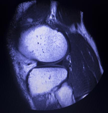 Magnetic resonance imaging MRI knee posterior horn medial meniscus tear scantest results. Stock Photo - 117072876