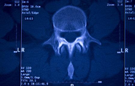 Medical hospital x-ray hips spine pelvis MRI traumatology scan.