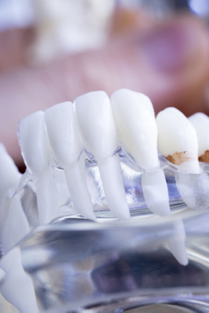 Dentist dental teeth teaching model showing each tooth and gum for patients and students.