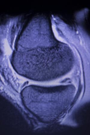 Magnetic resonance imaging MRI knee posterior horn medial meniscus tear scantest results. Stock Photo - 122896780