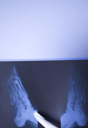 Medical hospital x-ray feet traumatology scan. Stock Photo