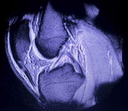 Magnetic resonance imaging MRI knee posterior horn medial meniscus tear scantest results.