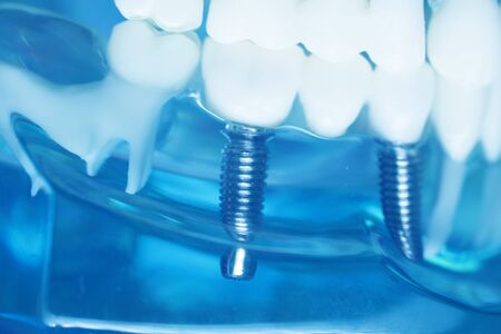Dentists perfect white teeth teaching dental plastic model with titanium implant. Banque d'images
