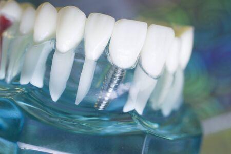 Dentists perfect white teeth teaching dental plastic model with titanium implant. Archivio Fotografico