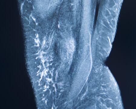 Knee sports injury mri mcl grade 2 tear magnetic resonance imaging orthopedic traumatology scan.