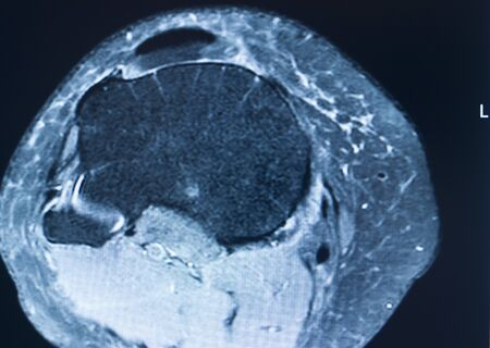Knee sports injury mri mcl grade 2 tear magnetic resonance imaging orthopedic traumatology scan. Zdjęcie Seryjne - 132777503