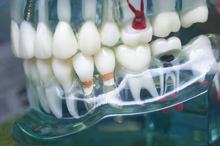Dentists perfect white teeth teaching dental plastic model with tooth decay and roots canal.