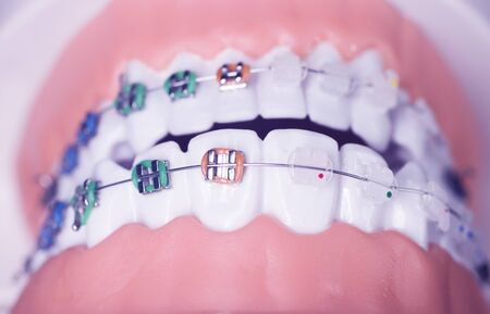 Modern metal retainers and plastic algners wire dental brackets teeth straighteners. 写真素材