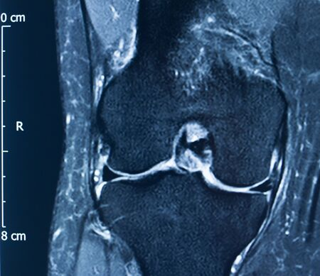 Knee sports injury mri mcl grade 2 tear magnetic resonance imaging orthopedic traumatology scan.