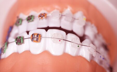 Modern metal retainers and plastic algners wire dental brackets teeth straighteners. Stockfoto