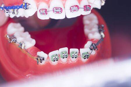 Modern metal retainers and plastic algners wire dental brackets teeth straighteners. Banco de Imagens