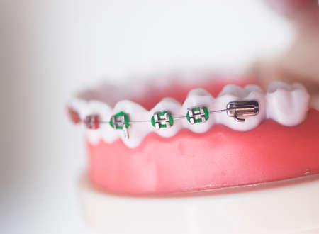 Dental teeth aligner bracket teaching student model showing gums and metal tooth straighteners.
