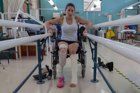 Nuevo amputado aprendiendo a caminar nuevamente después de estar en la explosión de un bote