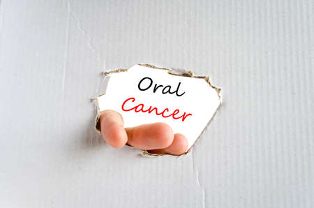 oral cancer: Oral cancer text concept isolated over white background Stock Photo