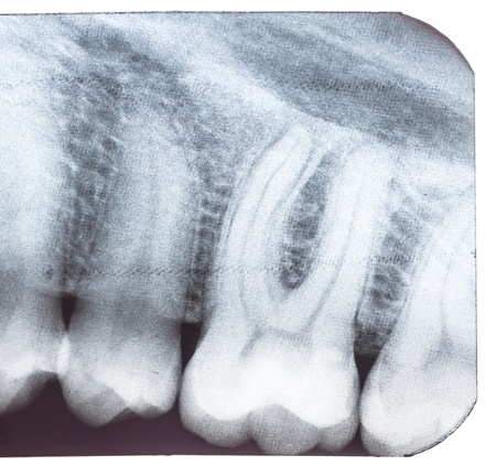 Tooth x-ray isolated on white background  Macro  photo