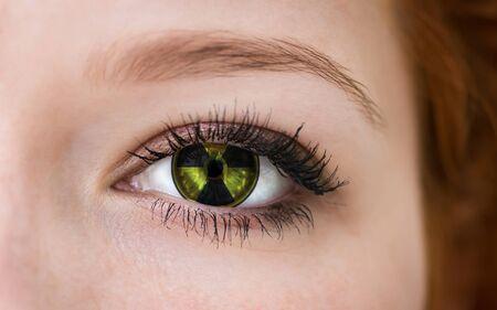Human eye with radiation hazard symbol - concept photo. Stock Photo