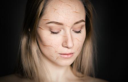 Vrouw met gebarsten huid als concept van cosmetisch en uitdrogingseffect.