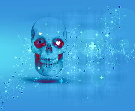 rheumatism: skull