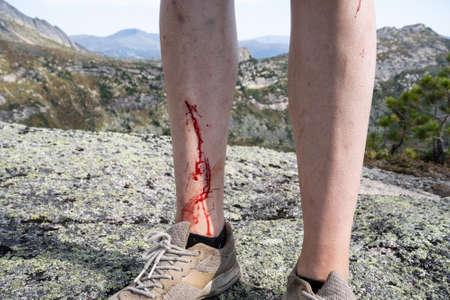 Coupures aux jambes d'une jeune fille blessée lors d'un trek en montagne. Sang visible, écorchures cutanées. Banque d'images