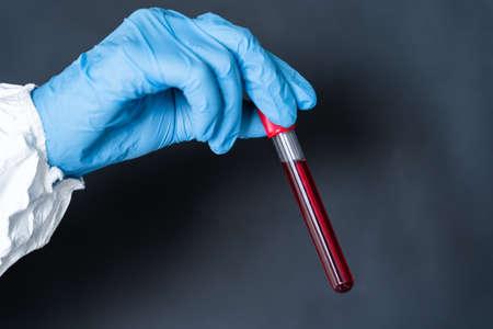 hand holding blood in test tube close up. Zdjęcie Seryjne