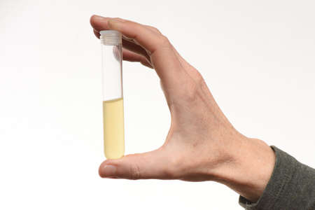urine sample in medical diagnostics, urea testing at the preventive medical checkup