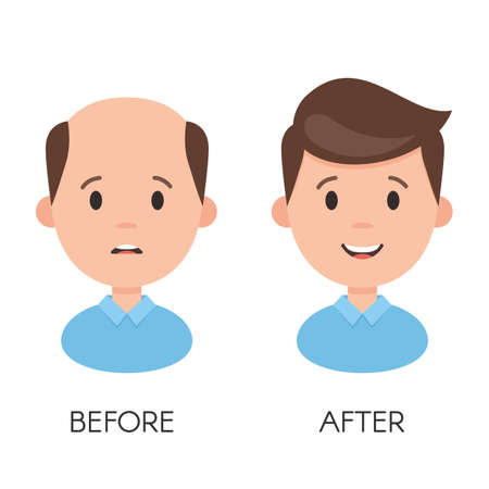 Male hair loss. Man with alopecia problem before and after hair treatment and transplantation. Vector illustration isolated on white background Stok Fotoğraf