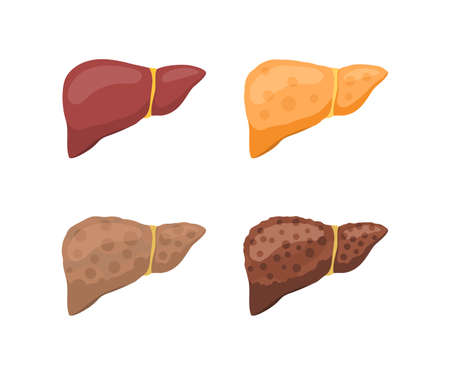 Stages of human liver damage. Healthy, fatty, with fibrosis and with cirrhosis. Vector illustration isolated on white background 스톡 콘텐츠