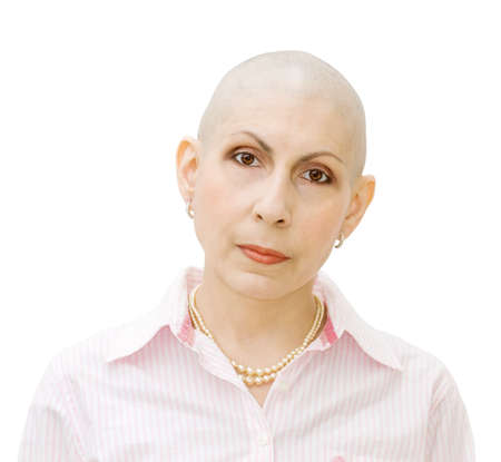 Portrait of a beautiful cancer patient, undergoing chemotherapy. Real woman, diagnosed with ovarian and breast cancer.  Stock Photo