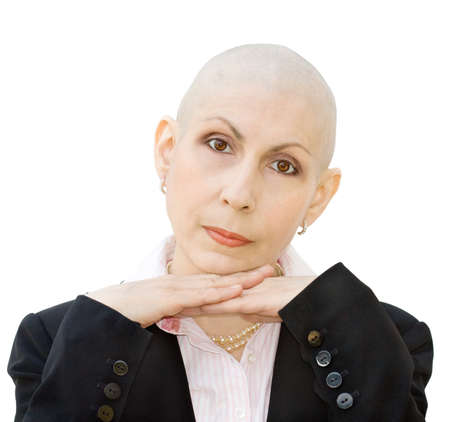 Portrait of cancer patient undergoing chemotherapy and loss of hair. Real woman, diagnosed with breast cancer and ovarian cancer. Isolated over white background. Stock Photo