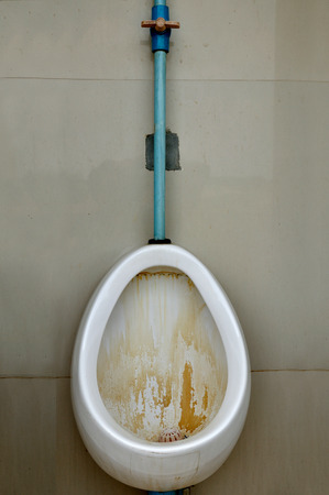 White single men bidet not clean, very dirty Standard-Bild