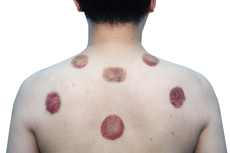 Asian man 43 years old with marking of vacuum cupping, sport therapy