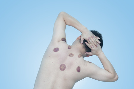 cupping glass cupping: Asian man 43 years old with marking of vacuum cupping, sport therapy