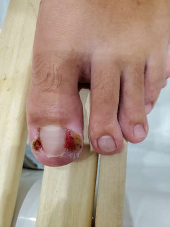 painful inflamed big toe with ingrown toenail, pus. Granulation of big toe rollers.