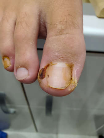 close-up of the beginning of healing of an inflamed big toe with an ingrown toenail. the granulation on the toe begins to heal.