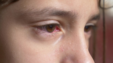 Close up. Little girl shows the eyes with conjunctivitis. The viral on eye.