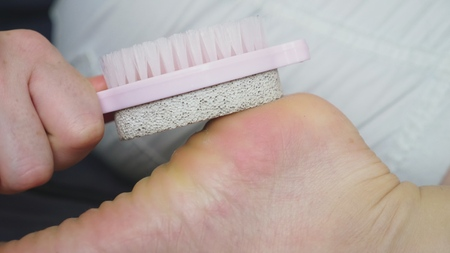care for dry skin on feet and heels using pedicure pumice tools and a brush.