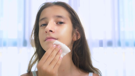 teenage skin care concept. teenager girl cleans the skin of the face with a cotton swab with lotion.