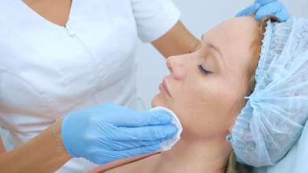 close-up of womans face. beautician wipes the patients face with cotton pads Stock fotó
