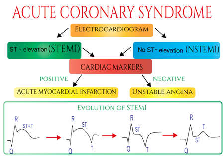 Acute coronary syndrome. Schematic Electrocardiogram of myocardial infarction heart attack . Vector medical infographic. Vektorové ilustrace