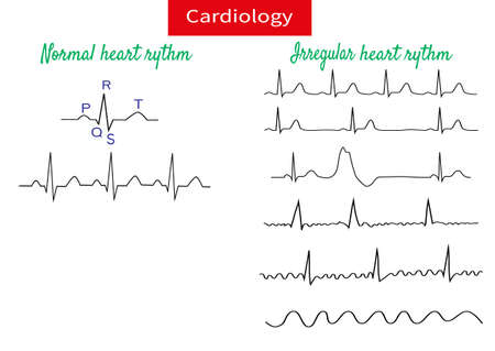 Normal and pathological ecg collection.Vector illustration.