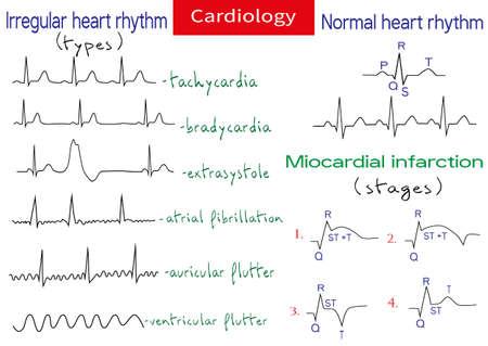 Normale und pathologische EKG-Sammlung. Schematische Vektorgrafik verschiedener Arten von unregelmäßigem Rhythmus und normalem Herzrhythmus.
