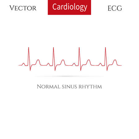 Normal heart rhythm, normal sinus rhythm . Vector illustration.