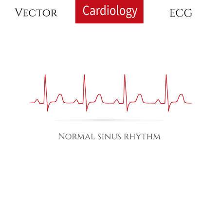 Rythme cardiaque normal, rythme sinusal normal. Illustration vectorielle. Vecteurs