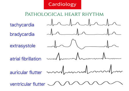 Pathological ecg collection. Shematic vector illustration of different types of irregular heart rhythm. Vettoriali