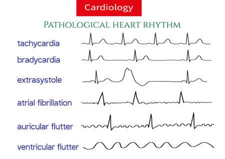 Pathologische ecg-collectie. Shematische vectorillustratie van verschillende soorten onregelmatig hartritme.