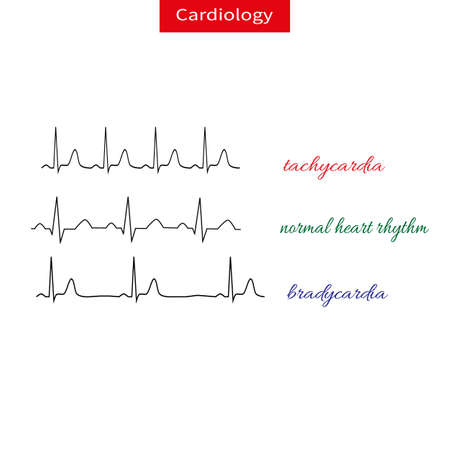 Tachycardia and bradicardia. Difference of heart pulsating, Fast and slow rhythm of heart. Normal heart rhythm. Schematic vector illustration. Stock Illustratie