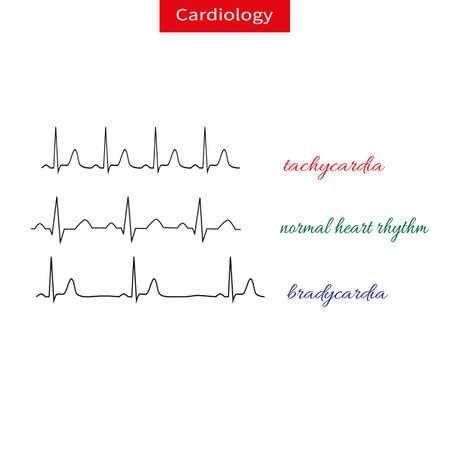 Tachykardie und Bradikardie. Unterschied des pulsierenden Herzens, schneller und langsamer Herzrhythmus. Normaler Herzrhythmus. Schematische Vektorillustration.