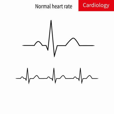 Normale und pathologische EKG-Sammlung. Schematische Vektorgrafik verschiedener Arten von unregelmäßigem Rhythmus und normaler Herzfrequenz.